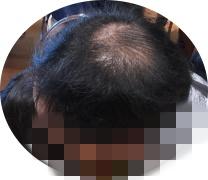 花蘭咲からんさは男性薄毛に効果あるか